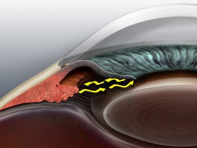 glaucoma angle eye associates
