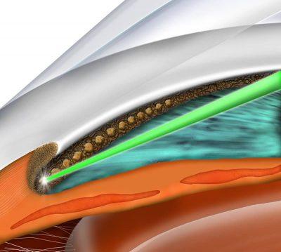 slt glaucoma laser eye associates