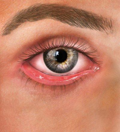 ectropian eye associates